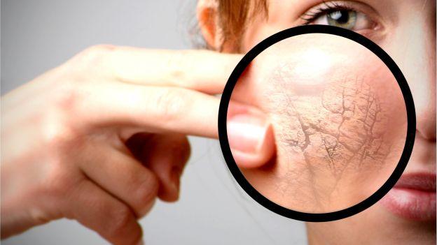 come combattere la pelle secca in inverno